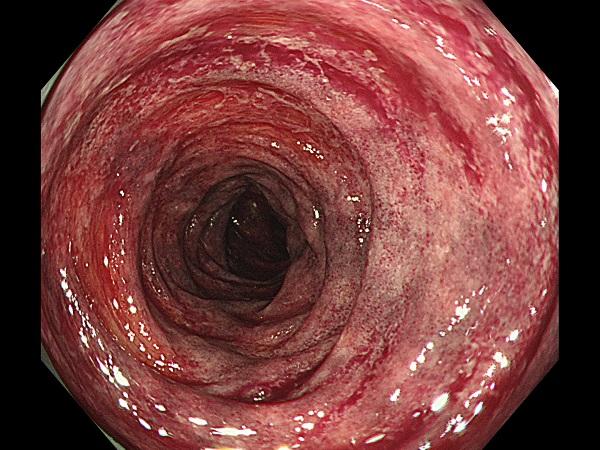 虚血性腸炎Case1