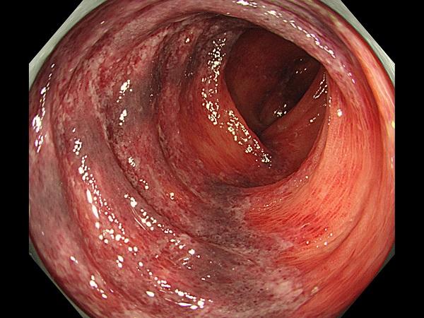 虚血性腸炎Case2
