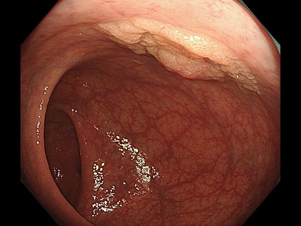 大腸ポリープ(腺腫)Case1.2